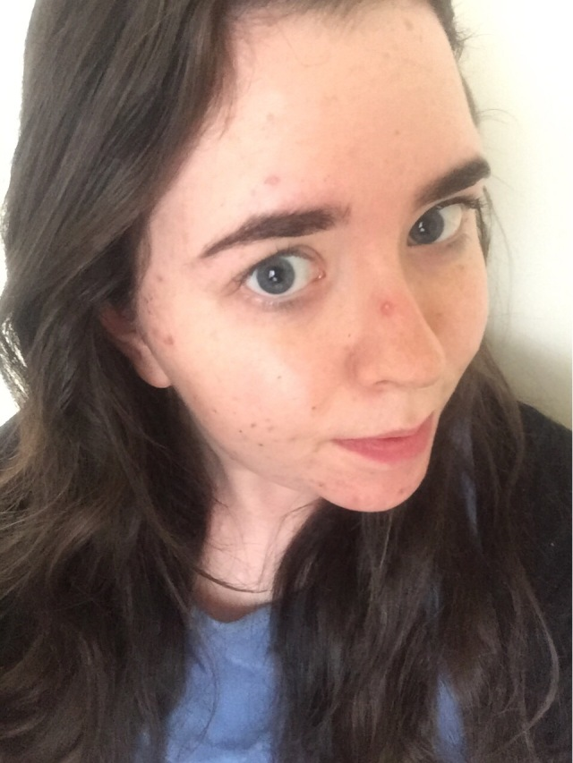 elf acne fighting foundation review before and after